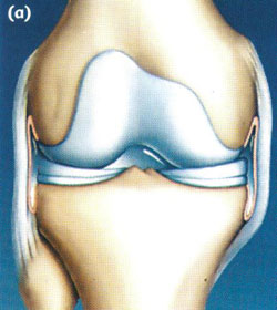 Arthroscopy of the knee joint3.jpg