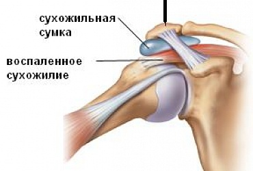 Аrthroscopy of shoulder joint