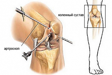 Аrthroscopy of knee joint