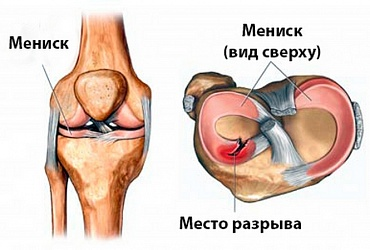 Injury of knee joint meniscus