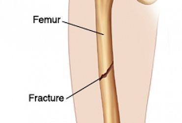 Fracture of femur