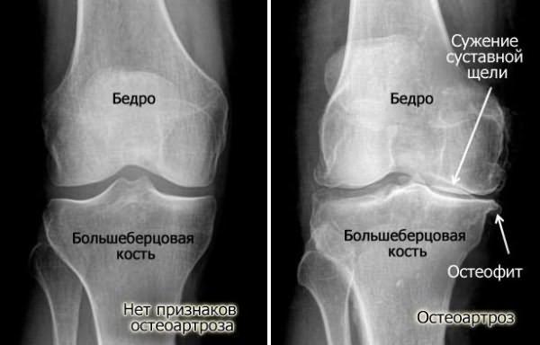 рентгеновские признаки гонартроза.png