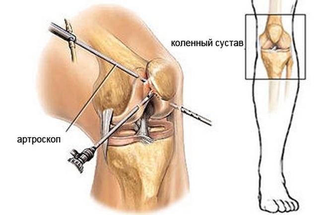 Какие заболевания диагностируются при эндоскопической операции коленного сустава жизнь с эндопротезами крупных суставов