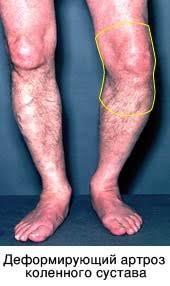 Деформирующему артрозу коленного сустава артрологический центр на пролетарской артроскопия коленного сустава